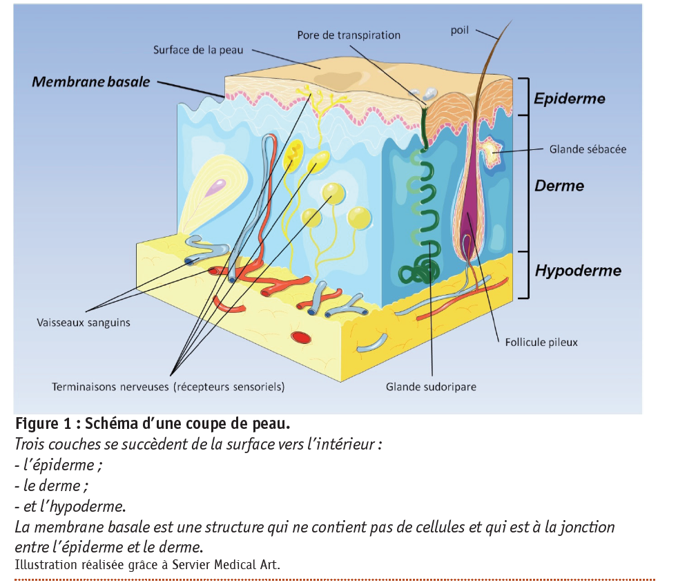 epidermolyse bulleuse